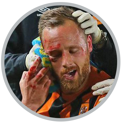 HSC NSFA Facial Injury